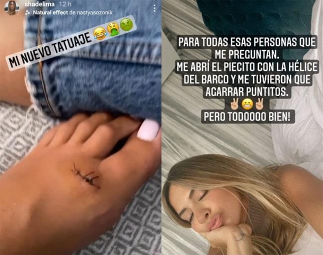 Shannon de Lima, accidente, James Rodríguez (2)
