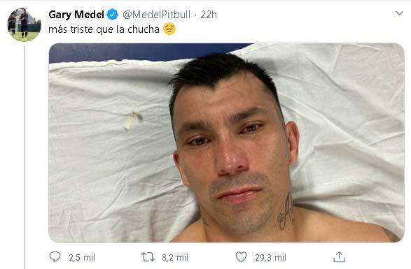 Venezuela y Chile también pierden jugadores para enfrentar a la Selección Colombia
