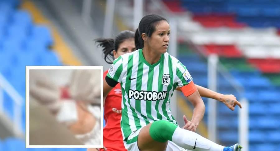 Polémica en el fútbol femenino tras puñetazo que provocó 5 puntos en jugadora de América